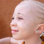 Albinos d'Afrique
